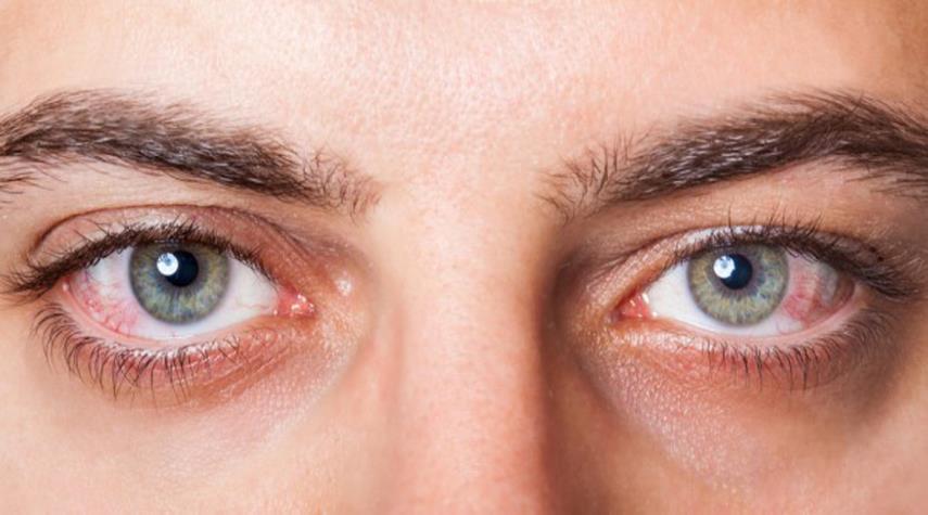 جفاف العيون - أسباب جفاف العين : إليك أهم 6 مسببات و طرق العلاج